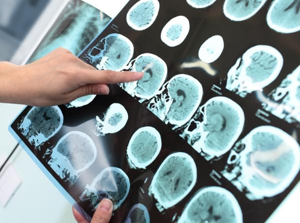 A Closer Look at Dementia: Alzheimer